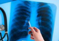 24 березня – Всесвітній день боротьби з туберкульозом
